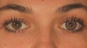 LD2PI pink kontaktlinse i brunt øje - en oplagt mulighed til farvede linser til mørke øjne