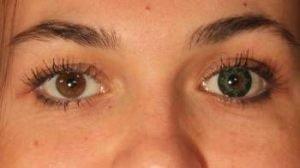 ON3GN grøn kontaktlinse i brunt øje - farvede linser i mørke øjne er muligt med grønne linser