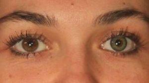PA3GN grøn kontaktlinse i brunt øje - farvede linser til mørke øjne kan godt give gode resultater