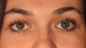 PA3TU grøn kontaktlinse i brunt øje - så farvede linser til mørke øjne er muligt